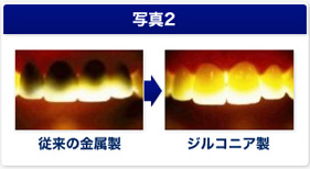 従来の金属製よりもジルコニア治療の方が歯の状態も綺麗に仕上がります。