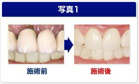 新丸子のサンタ歯科ではジルコニア治療を行っております。