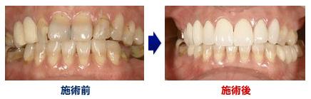 サンタ歯科ではオールセラミッククラウンの施術を行っております。