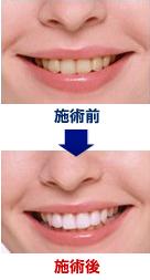 サンタ歯科では最新の技術を用いて施術しております。